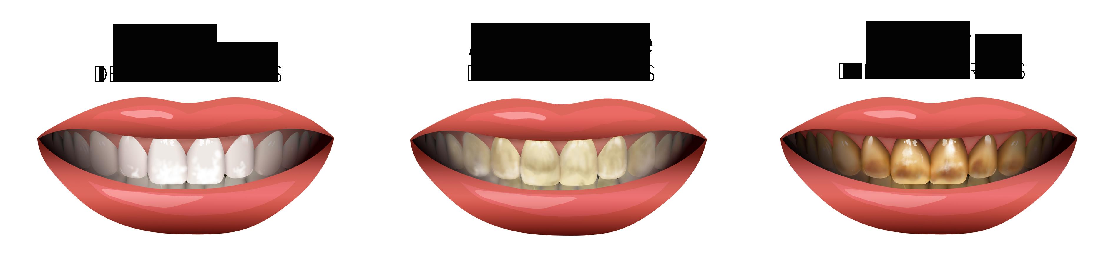 dental fluorosis chart