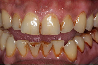dentist removing tobacco stains from teeth