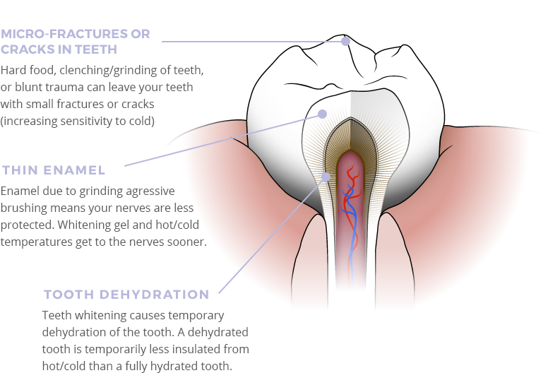 Sensitive Teeth When Whitening Our Desensitizing Gel Reduces Tooth