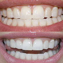 Teeth Whitening Trays (Custom Fitted) by Smile Brilliant