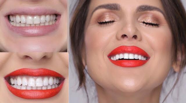 Teeth Whitening Reviews - Best As Of September 2019 - Smile