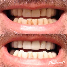 Teeth Whitening Reviews Best As Of August 2020 Smile Brilliant