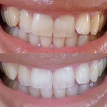 Teeth Whitening Trays Custom Fitted By Smile Brilliant