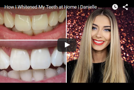 Teeth Whitening Reviews Best As Of May 2019 Smile