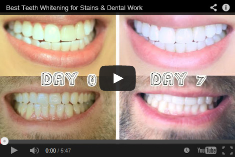 Teeth Whitening Reviews - Best As Of September 2019 - Smile