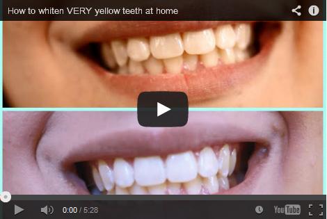 Teeth Whitening Reviews Best As Of September 2018 Smile Brilliant