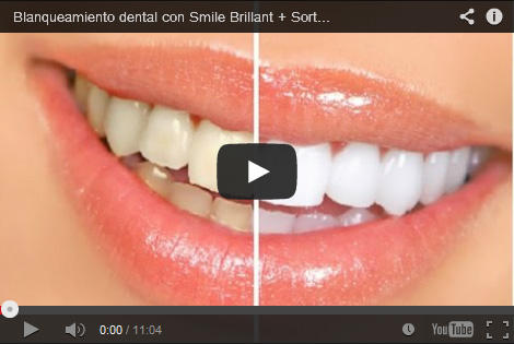 Teeth Whitening Reviews Best As Of February 2019 Smile Brilliant